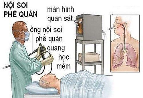 Vụ bệnh nhân tử vong sau nội soi: Bệnh viện Bạch Mai công bố nguyên nhân - Ảnh 1