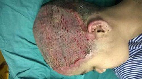 Uốn tóc mừng sinh nhật, thiếu nữ 17 tuổi bị hoại tử toàn bộ da đầu - Ảnh 2