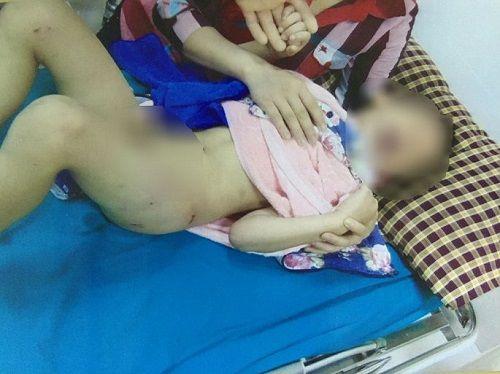 Bé trai 6 tuổi hoảng loạn vì bị chó nhà hàng xóm tấn công - Ảnh 1