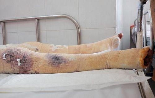 Bình gas mini phát nổ lúc nấu ăn, thiếu nữ 18 tuổi bị bỏng nặng - Ảnh 2