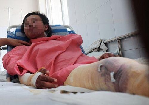 Bình gas mini phát nổ lúc nấu ăn, thiếu nữ 18 tuổi bị bỏng nặng - Ảnh 1