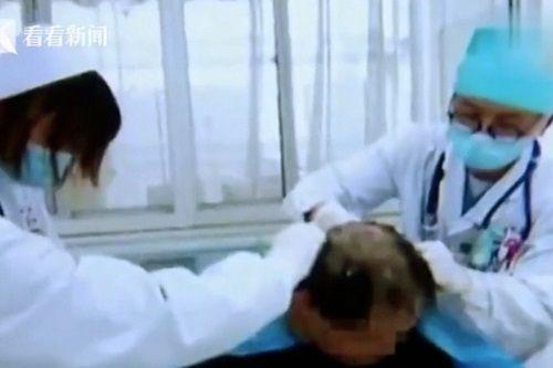 Người đàn ông Trung Quốc bị ngộ độc nặng vì nhầm thuốc trừ sâu thành dầu gội đầu - Ảnh 1