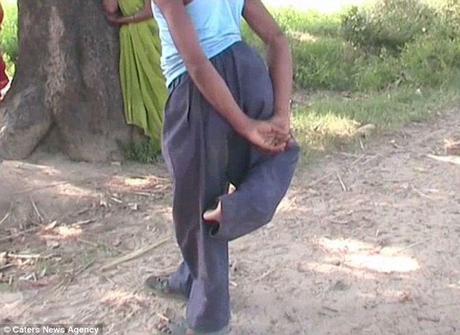 Kỳ lạ chàng trai 4 chân bị coi là ma quỷ ở Ấn Độ - Ảnh 3