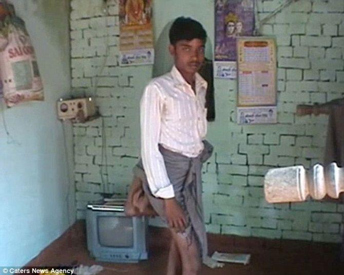 Kỳ lạ chàng trai 4 chân bị coi là ma quỷ ở Ấn Độ - Ảnh 1