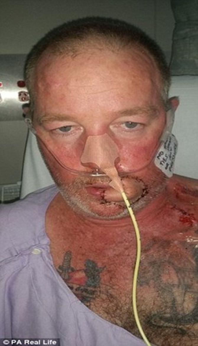 Khuôn mặt biến dạng khủng khiếp vì ung thư da sau cơn cảm lạnh - Ảnh 2