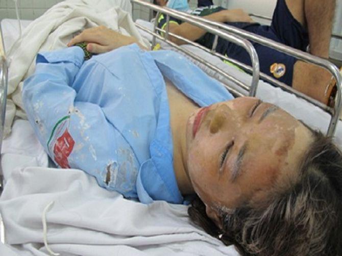 Bắt đối tượng tạt axit hai nữ sinh giữa đường phố Sài Gòn - Ảnh 1