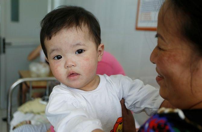 Dịch sởi nặng nhất trong hàng thập kỷ ở Việt Nam - Ảnh 9