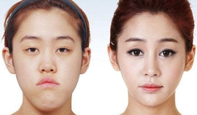 Cơn sốt giải phẫu thẩm mỹ ở Hàn Quốc - Ảnh 1