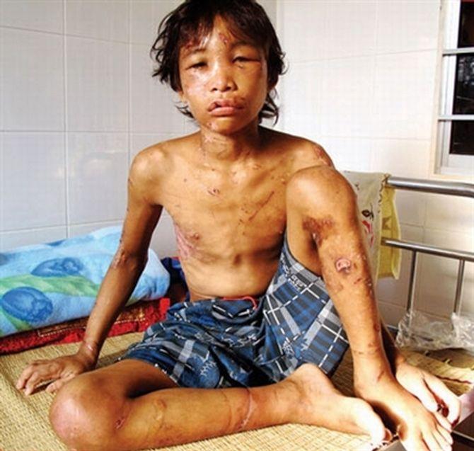 Những vụ bạo hành trẻ em kinh dị nhất Việt Nam - Ảnh 2
