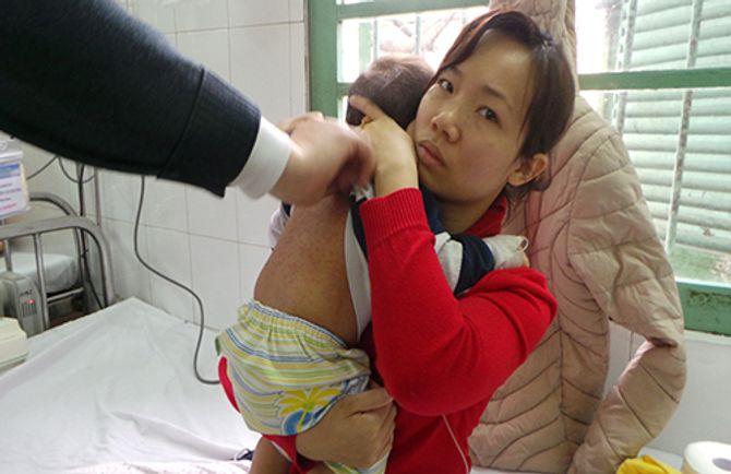 Hơn 90% trẻ bị sởi chưa được tiêm phòng vắc xin sởi - Ảnh 2