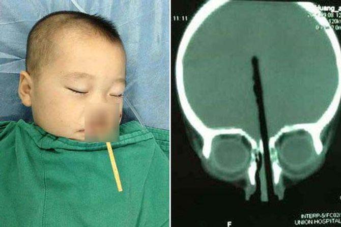 Trung Quốc: Bé trai 2 tuổi bị đũa chọc từ mũi xuyên qua não