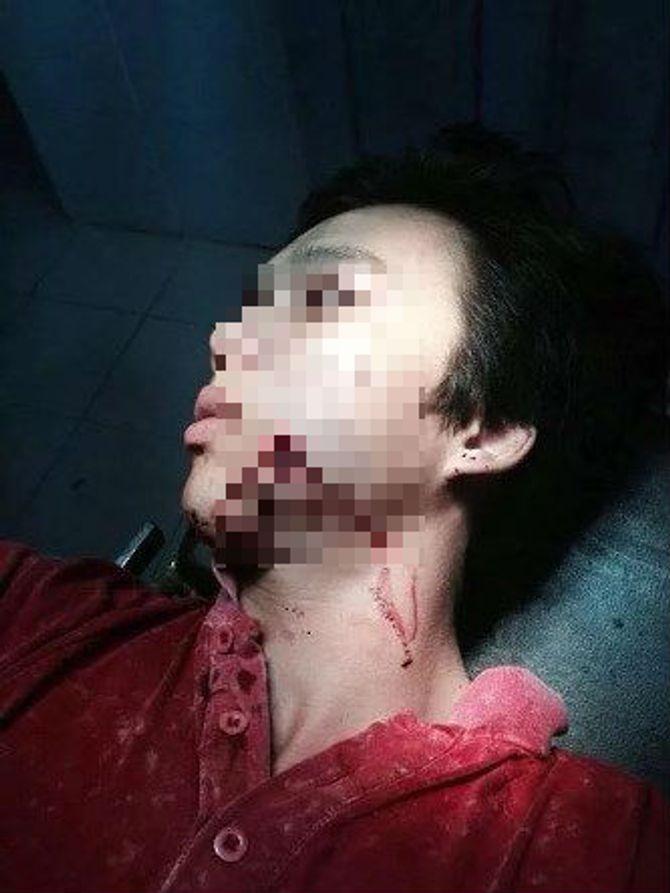 Công an xã bắn lạc đạn cao su trúng mặt người vi phạm giao thông 5