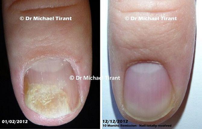 Bệnh nấm móng và phương pháp điều trị hiệu quả bệnh nấm móng - Ảnh 1