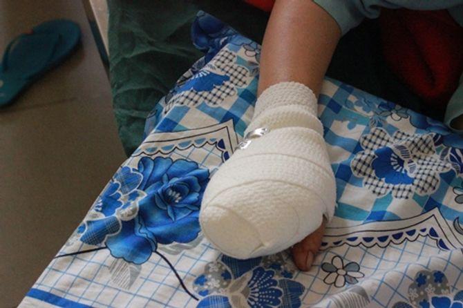 Người phụ nữ bị máy xay thịt nghiền nát 4 ngón tay 4