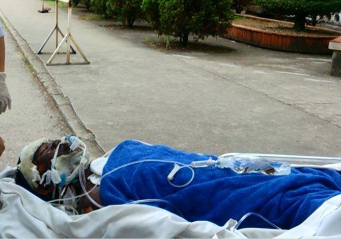 """6 người bị cháy bí ẩn ở Quảng Ninh: """"Tôi không nhận ra ai là chồng mình"""" - Ảnh 1"""