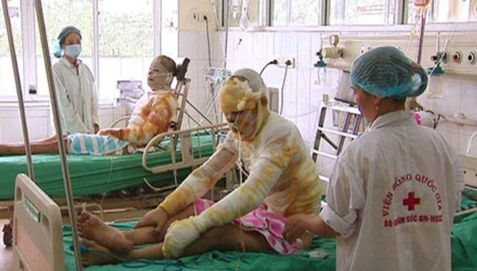 Vụ cháy bí ẩn ở Quảng Ninh: 5 nạn nhân vẫn đang nguy kịch