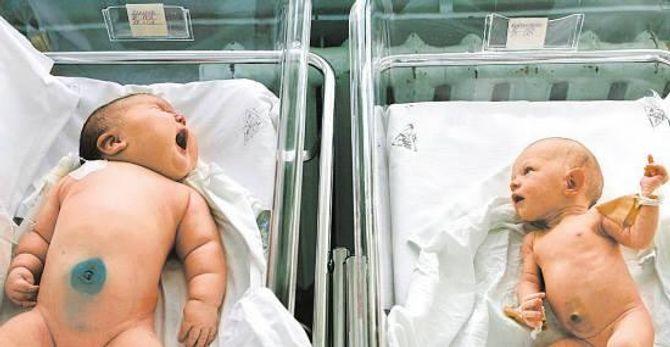 """Cận cảnh bé sơ sinh """"khổng lồ"""" nặng 18 kg phá vỡ kỷ lục thế giới - Ảnh 1"""