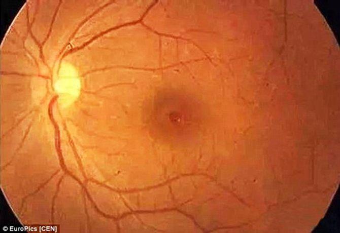 Đau xót em bé 3 tháng tuổi bị mù mắt vì ánh đèn flash máy ảnh - Ảnh 2