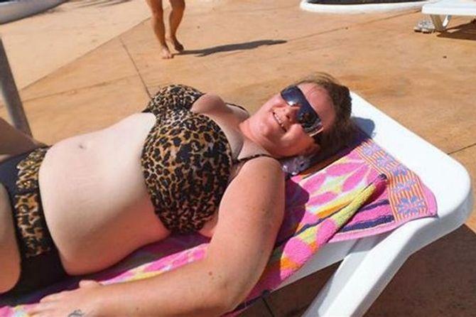 Bị ung thư da vì thoa dầu em bé và tắm nắng hàng giờ - Ảnh 1