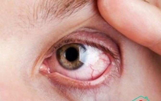 Những tai hại khi bạn nhịn hắt xì hơi - Ảnh 3
