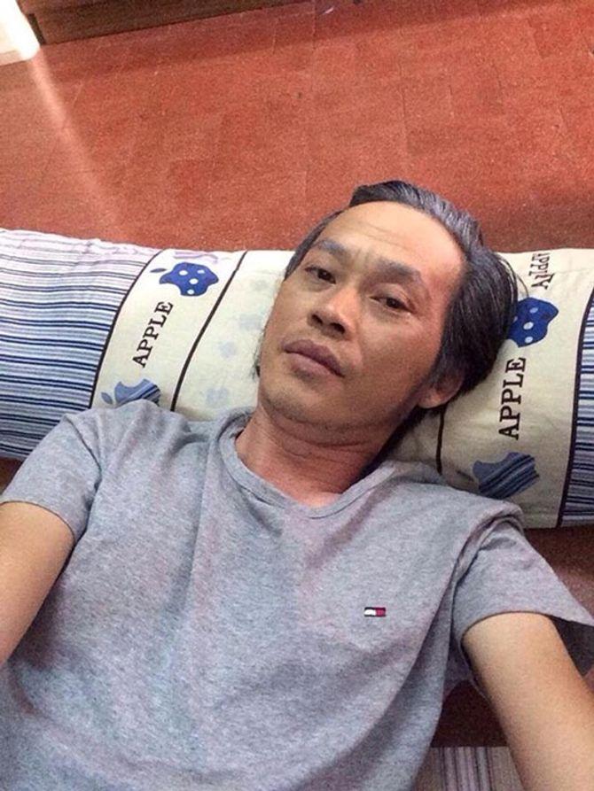 Thân hình da đụng xương, sụt 7 kg của Hoài Linh - Ảnh 9