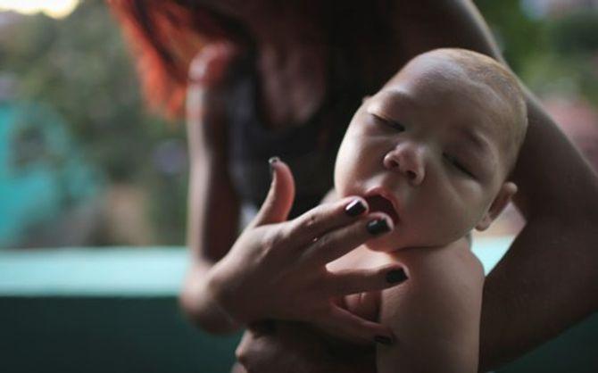 Bộ Y tế: Virus Zika gây teo não đang tiến sát Việt Nam - Ảnh 2