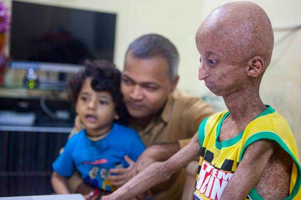 Cậu bé 14 tuổi mang ngoại hình ông cụ do rối loạn di truyền - Ảnh 1