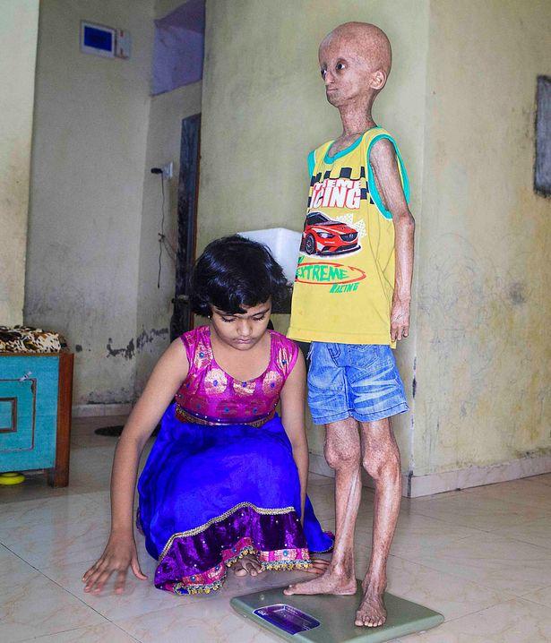 Cậu bé 14 tuổi mang ngoại hình ông cụ do rối loạn di truyền - Ảnh 2