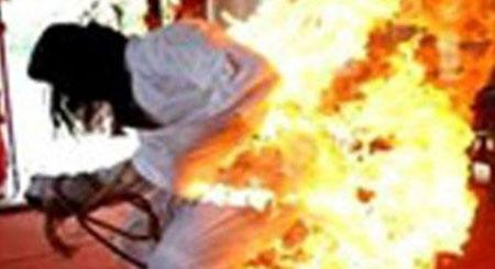 Bị người tình tưới xăng đốt vì không chịu bỏ buôn ma túy - Ảnh 1