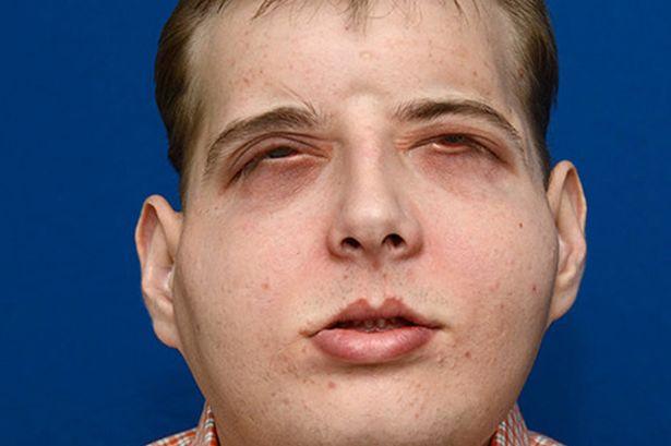 Người lính cứu hỏa bị bỏng nặng được cấy ghép mặt thành công - Ảnh 1