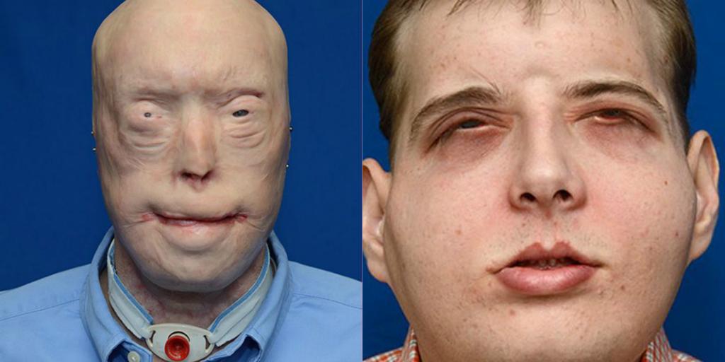 Người lính cứu hỏa bị bỏng nặng được cấy ghép mặt thành công - Ảnh 2
