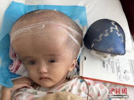 Phẫu thuật hộp sọ cho cô bé có đầu to gấp 4 người thường - Ảnh 1