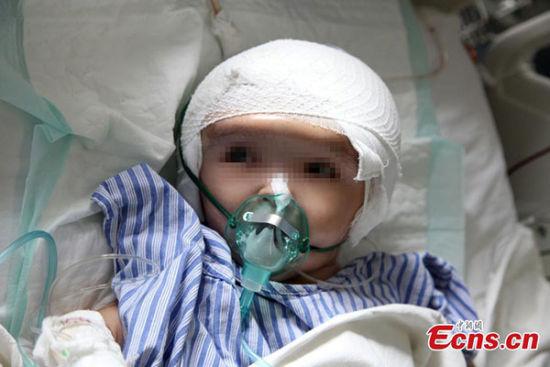 Phẫu thuật hộp sọ cho cô bé có đầu to gấp 4 người thường - Ảnh 2