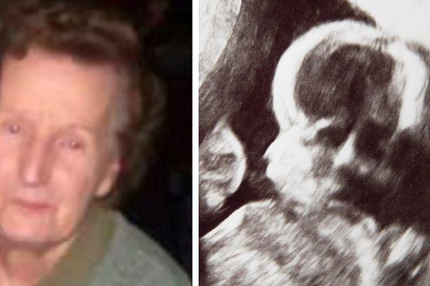 Sốc: Khuôn mặt bà quá cố hiện lên trong ảnh siêu âm của cháu - Ảnh 3