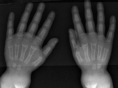 Bệnh còi xương xuất hiện từ 5000 năm trước - Ảnh 1