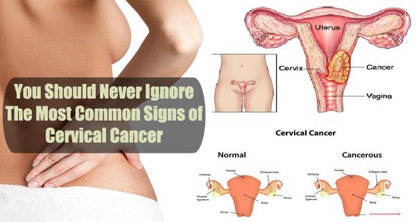 Những dấu hiệu cho thấy có thể bạn đã bị ung thư - Ảnh 1
