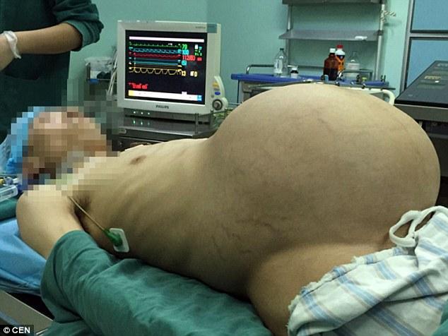 """Kinh hoàng người đàn ông """"mang thai"""" khối u 15kg suốt 10 năm - Ảnh 2"""
