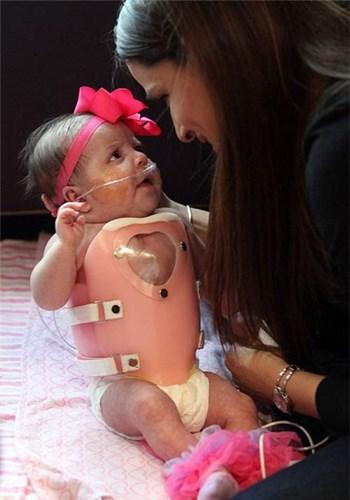 Xót lòng những bé sơ sinh có nội tạng ngoài cơ thể - Ảnh 6