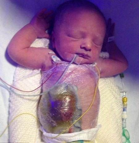Xót lòng những bé sơ sinh có nội tạng ngoài cơ thể - Ảnh 8