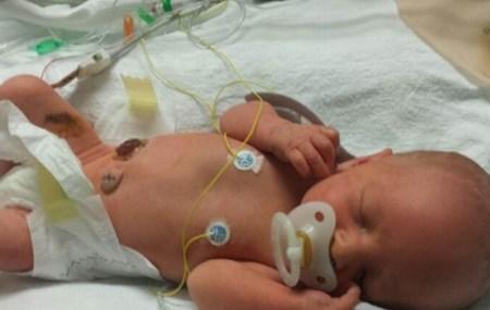 Xót lòng những bé sơ sinh có nội tạng ngoài cơ thể - Ảnh 9