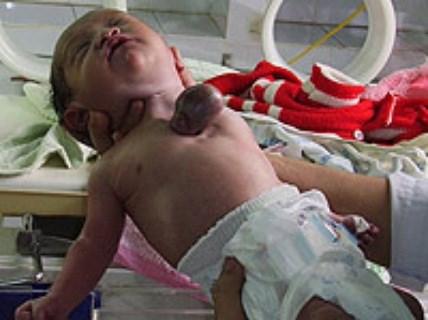 Xót lòng những bé sơ sinh có nội tạng ngoài cơ thể - Ảnh 7