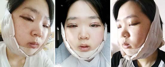 Thay đổi ngoạn mục sau phẫu thuật thẩm mỹ: Mọi khuyết điểm được cắt gọt, chỉnh sửa hoàn hảo đến khó tin  - Ảnh 4
