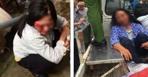 Đốt xe, đánh người vì nghi bắt cóc trẻ em: Đừng nhân danh lẽ phải! - Ảnh 1
