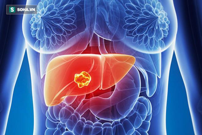 Chuyên gia hàng đầu BV Bạch Mai chỉ 4 nguyên nhân, 7 dấu hiệu ung thư gan không nên bỏ qua - Ảnh 2