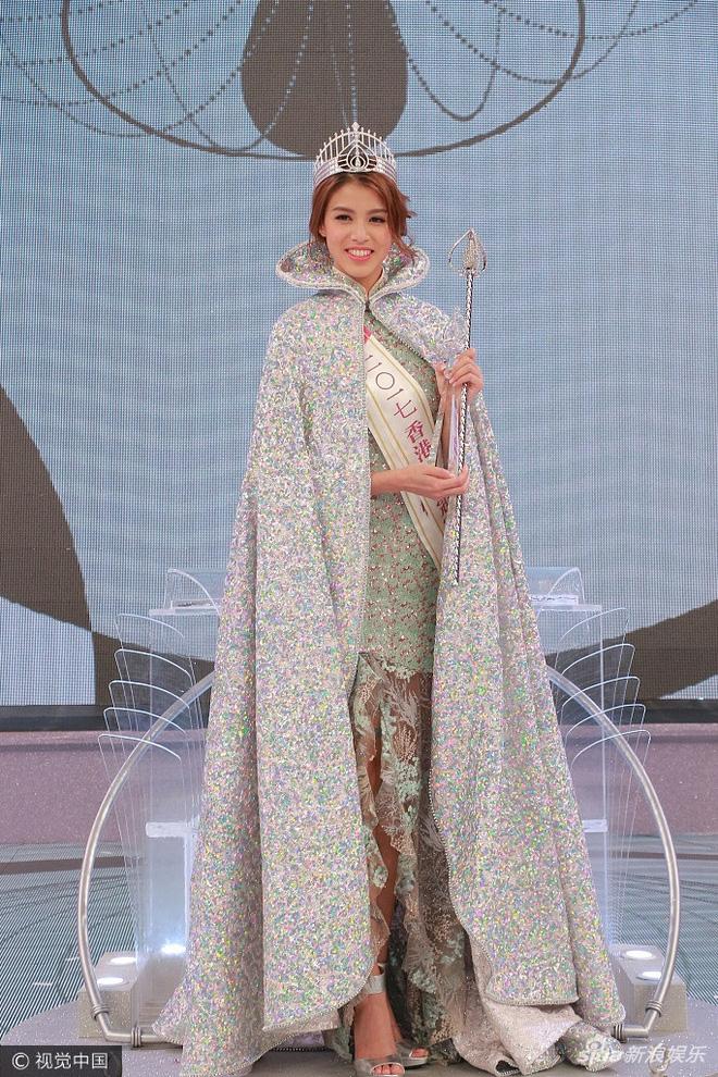 Choáng với thí sinh răng hô, vai thô vẫn đăng quang Hoa hậu Hong Kong  - Ảnh 1