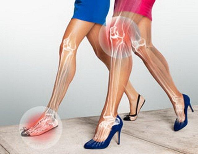 Image result for đi giày cao gót có hại
