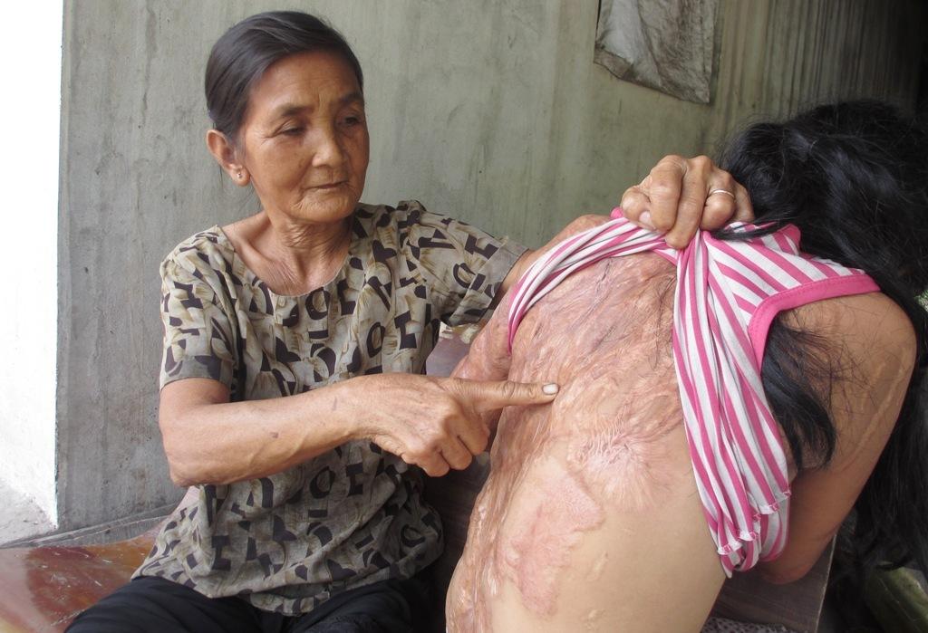 Bà nội của bé gái bị tạt axít đã đến tòa xin đôi mắt tử tù Nguyễn Hữu Tình - Ảnh 2