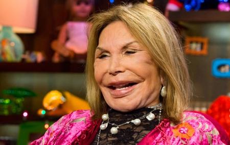 Phẫu thuật thẩm mỹ, gương mặt của sao Hollywood biến dạng - Ảnh 6