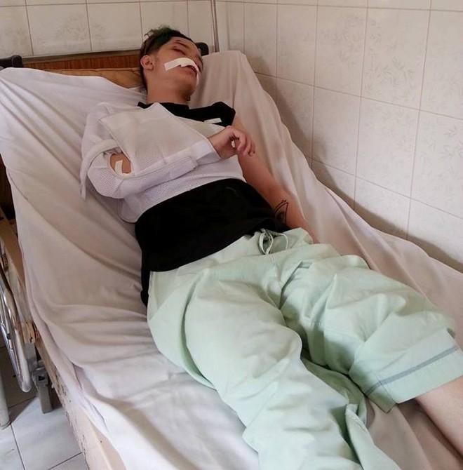 Sao Việt chấn thương sọ não, gãy răng vì gặp cướp - Ảnh 4