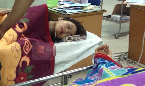 Sao Việt chấn thương sọ não, gãy răng vì gặp cướp - Ảnh 2